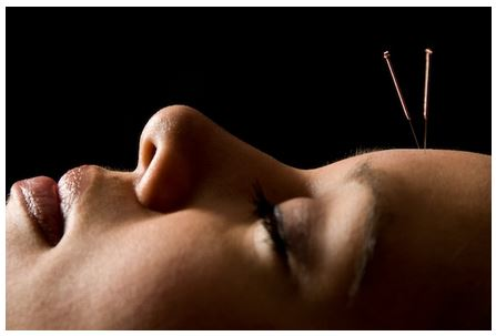 Is acupuncture the new botox.